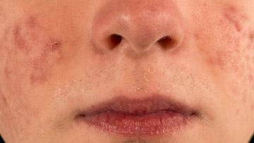 huidaandoening-acne