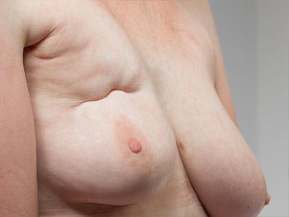 huidaandoening-lymfoedeem-na-kanker