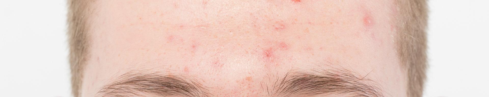 Huidaandoeningen-Acne
